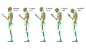 Neck pain skeleton